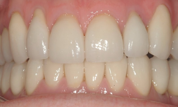 smoth white smile after veneers