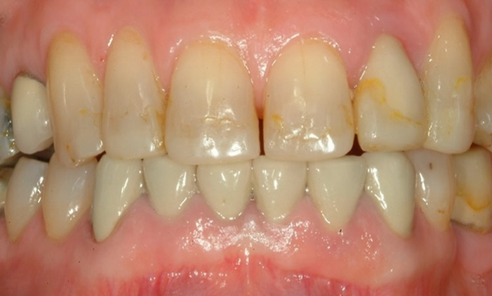 uneven and stained teeth with an uneven surface